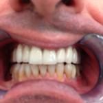 corone_singole_in_zircozio_ceramica_paziente_in_attesa_del_trattamento_inferiore